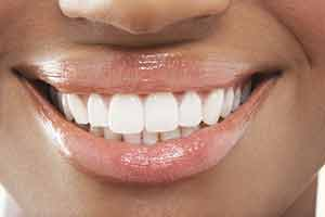 how-to-whiten-teeth